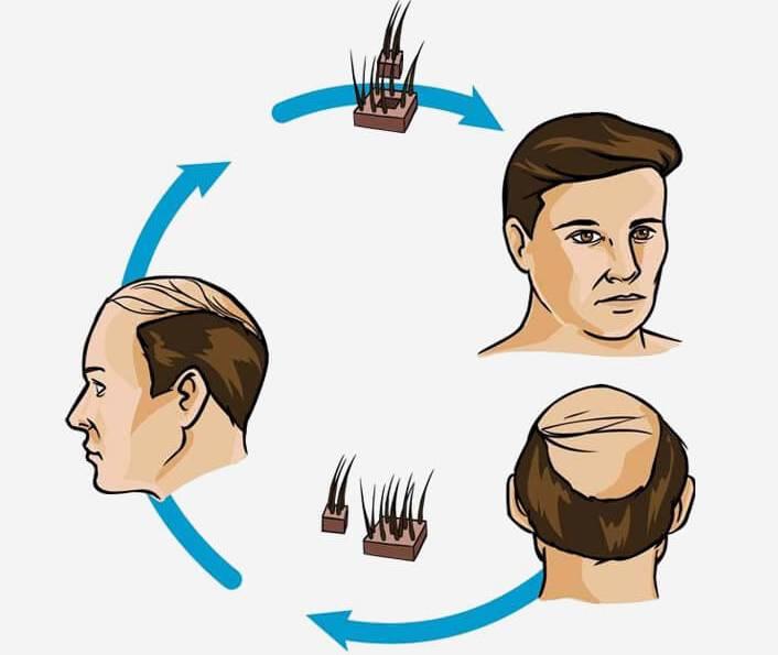 hair transplant clinic
